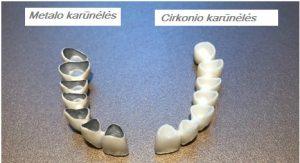 Dantų protezavimas Kazakevičiaus klinika