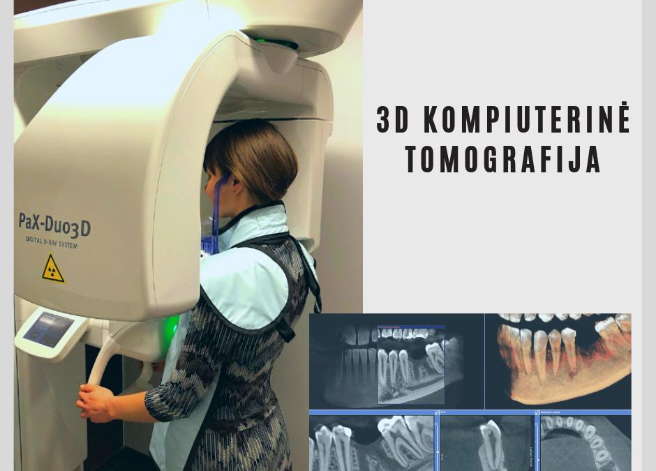 3D tomografija – itin tiksli diagnostika odontologijoje