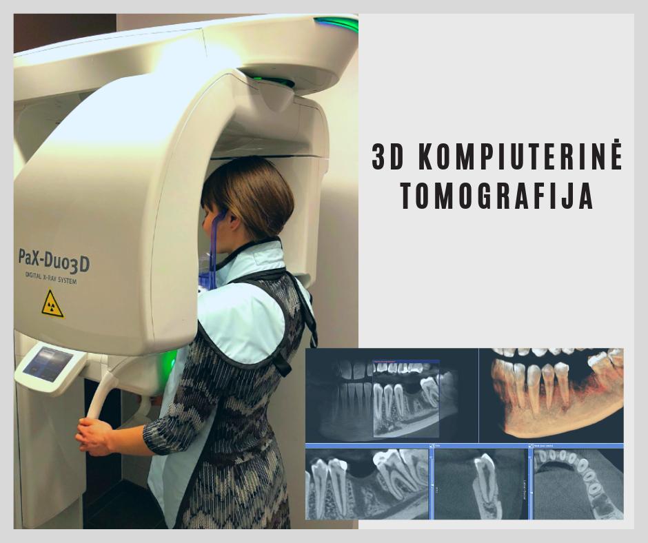 3D KOMPIUTERINĖ TOMOGRAFIJA kazakeviciausklinika.lt