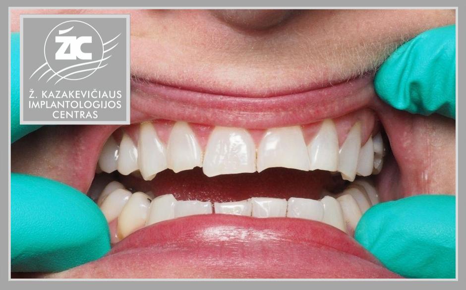 Nuskilo dantis! Patarimai, padedantys išsaugoti natūralius dantis