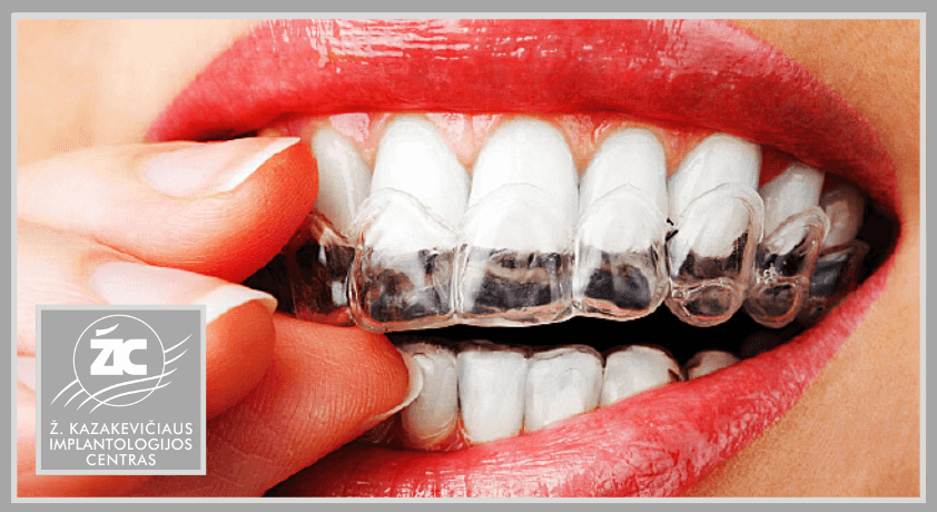 Dantų balinimas kapomis
