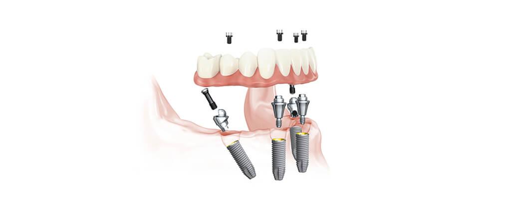 All-on-4® gydymo metodika, šypsena atkurta vos vieno vizito metu