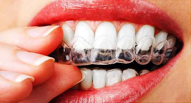 dantų balinimas marijampolėje