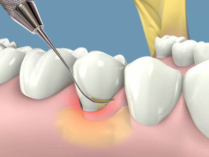 odontologijos klinika marijampole