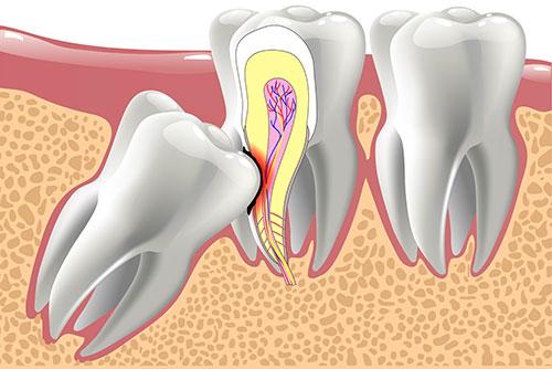 Protiniai dantys – ar visada juos reikia šalinti?