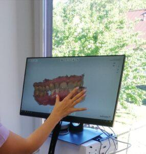 Dantų protezai Marijampolė