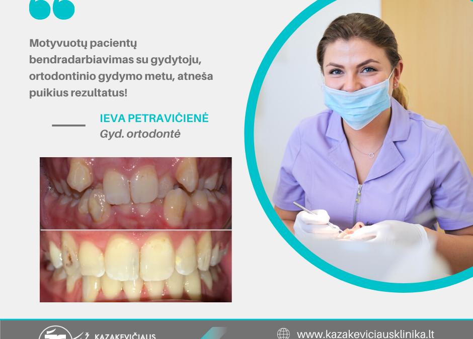 Ortodontinis gydymas – taisyklingai šypsenai