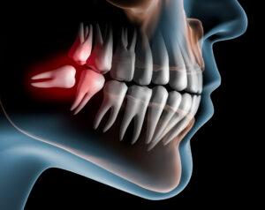 protiniai dantys. marijampolė