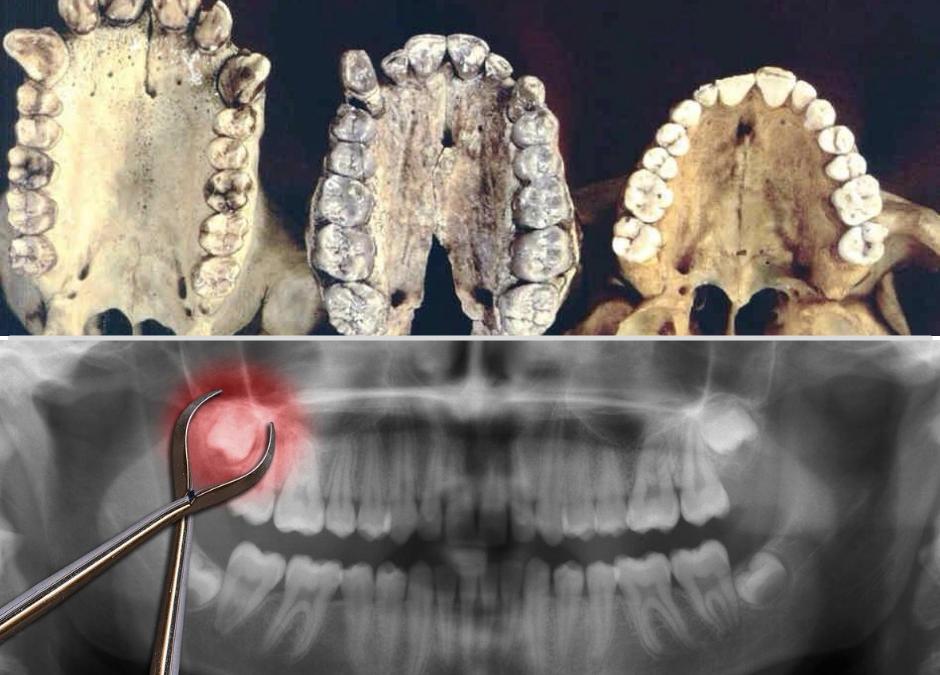 Evoliucija ir protiniai dantys